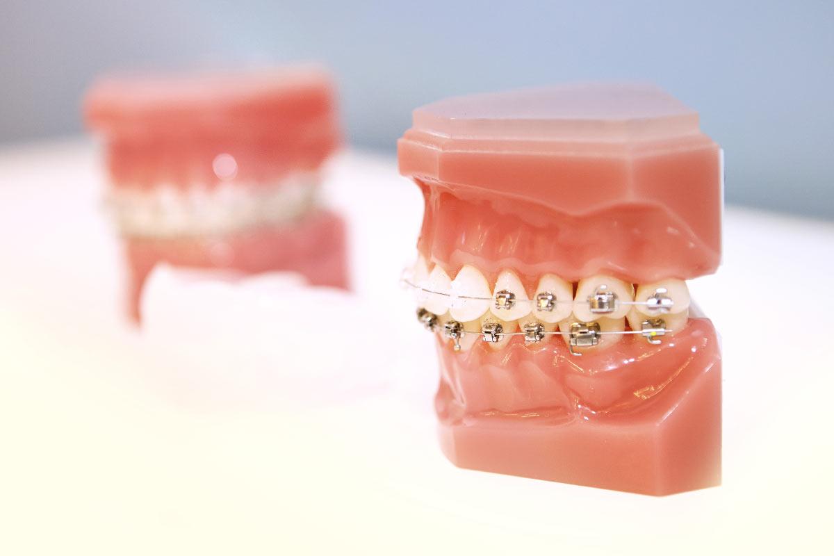 Behandlungsspektrum - Feste Zahnspange - Damon® Bracket System – für eine sanfte, effektive und komfortable Behandlung