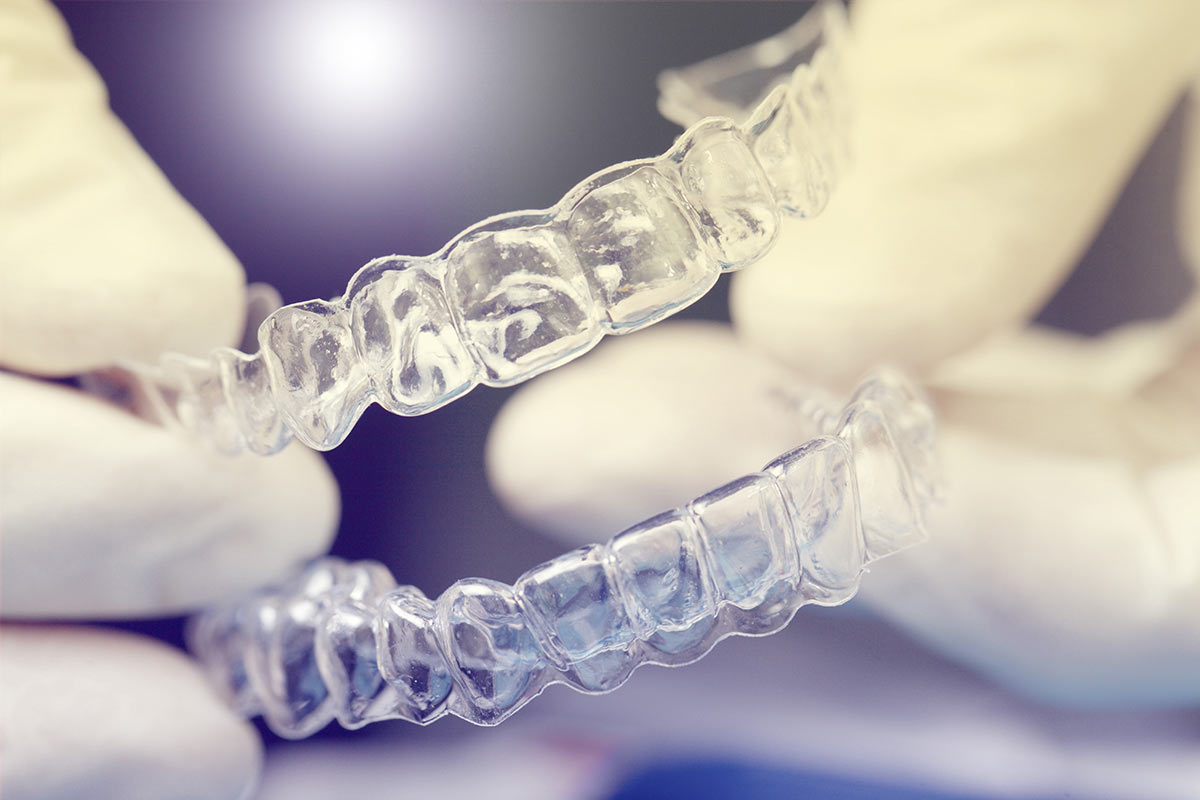 Behandlungsspektrum - Unsichtbare Zahnspange - Invisalign®, Clear Aligner® – die attraktive Alternative zur traditionellen ZahnspangeBehandlungsspektrum |