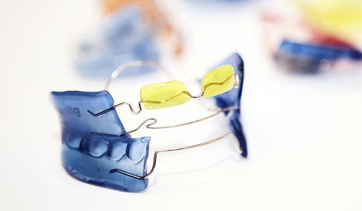 News - Tipps zur Pflege deiner herausnehmbaren Zahnspange