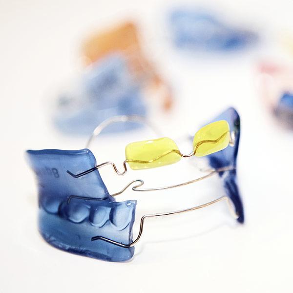 Frühbehandlung / Lose Zahnspange