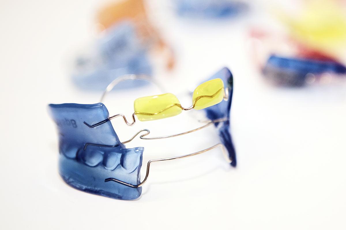 Behandlungsspektrum - Frühbehandlung / Lose Zahnspange - Bionator, Fränkel und Co. – die ideale Unterstützung für Kinder im Wechselgebiss